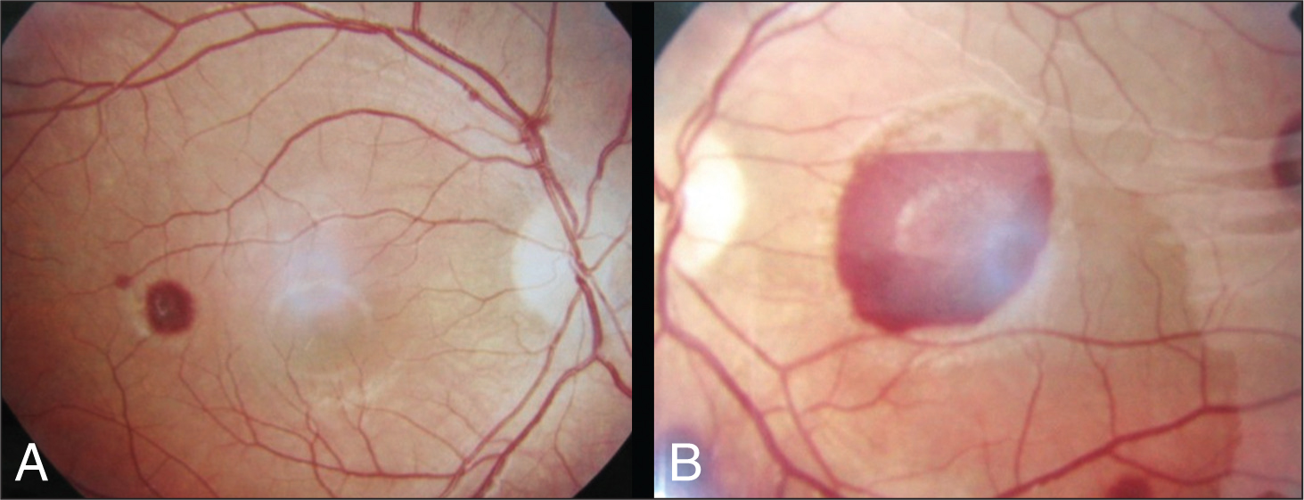 (A and B) Fundus Photographs of (A) the Right Eye and (B) The Left Eye Show Several Patchy Subhyaloid Retinal Hemorrhages that Are More Prominent in the Left Eye.
