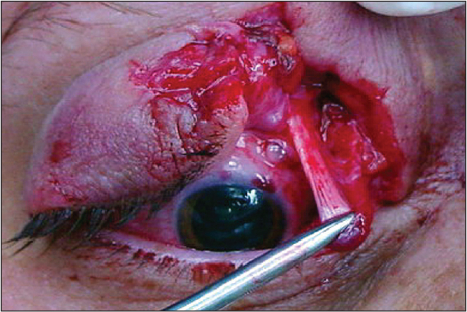 Intraoperative Photograph Showing Traction on the Tendon of the Superior Oblique Muscle Resulting in Depression of the Eye.