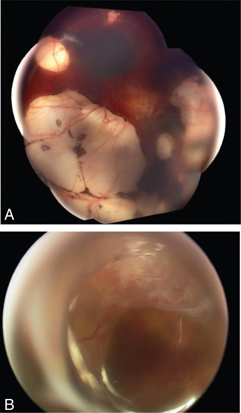 Fundus Photographs Showing the Changes in a Patient with Aicardi Syndrome. (A) Lacunae in the Superotemporal and Inferior Aspect of the Left Eye with a Large Coloboma in the Temporal Side and Severe Hypoplasia of the Optic Nerve Head. (B) In the Right Eye, a Large Superior Retinal Detachment Was Noted.