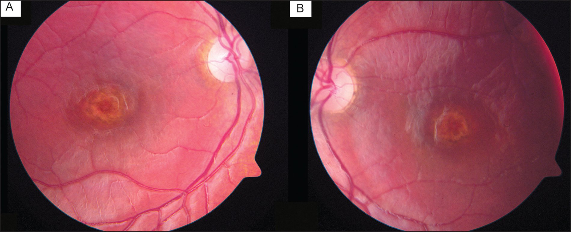 Red-Free Retinal Photographs Demonstrating Cobalamin C–Related Maculopathy. Right (A) and Left (B) Maculae Show Rings of Irregular Yellow Discoloration in a Bull's Eye Pattern Around the Fovea.