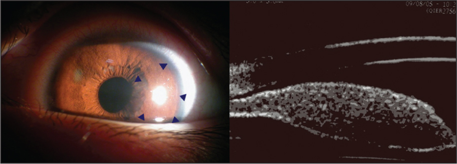 (Left) Anterior Segment Photography of the Left Eye Showed Iris Elevation. (Right) Ultrasound Biomicroscopy Images of the Iris Showed Thickening of the Iris Stroma.