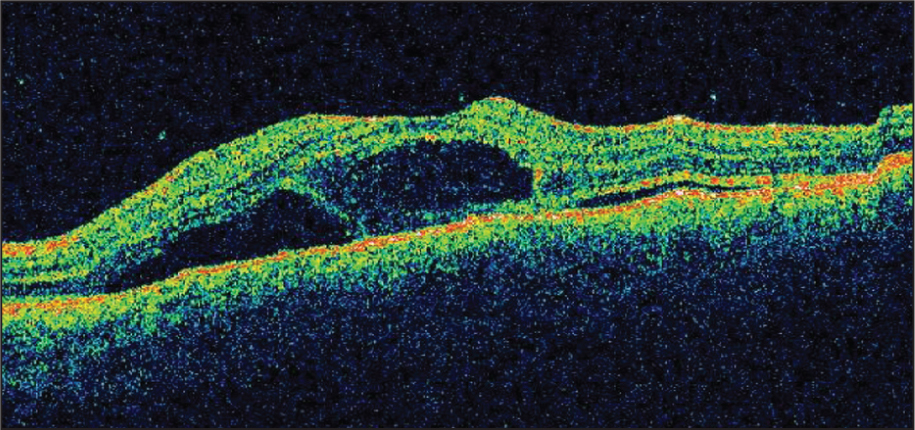 Optical Coherence Tomography of the Left Eye Showing Multiple Pockets of Subretinal and Intraretinal Fluid with Hyperreflective Echoes Underneath the Serous Retinal Detachment.