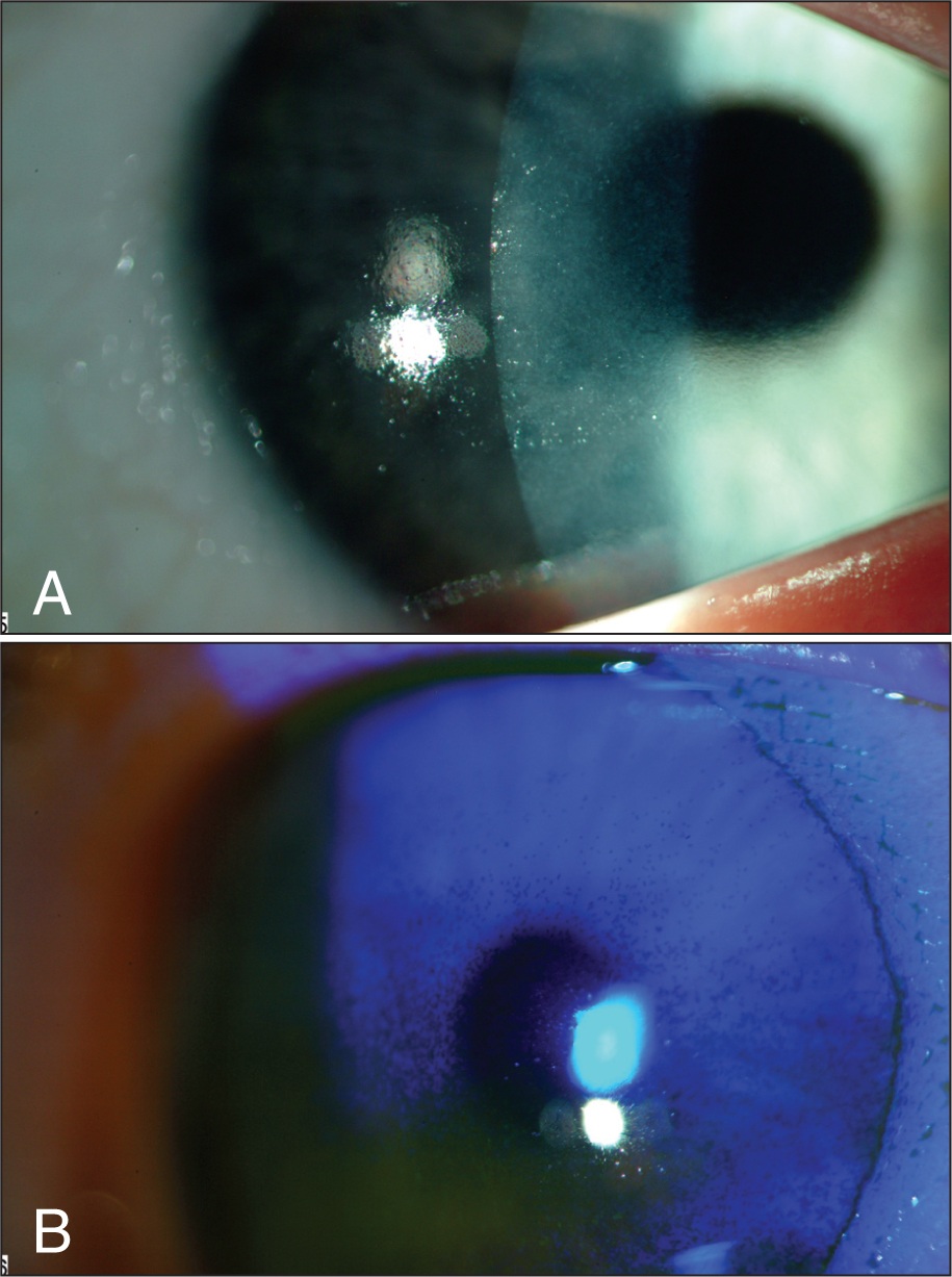 (A) Slit-Lamp Photograph Demonstrating Dull-Appearing Corneal Surface. (B) Fluorescein Staining Revealed Diffuse Interpalpebral Punctate Epithelial Erosions.