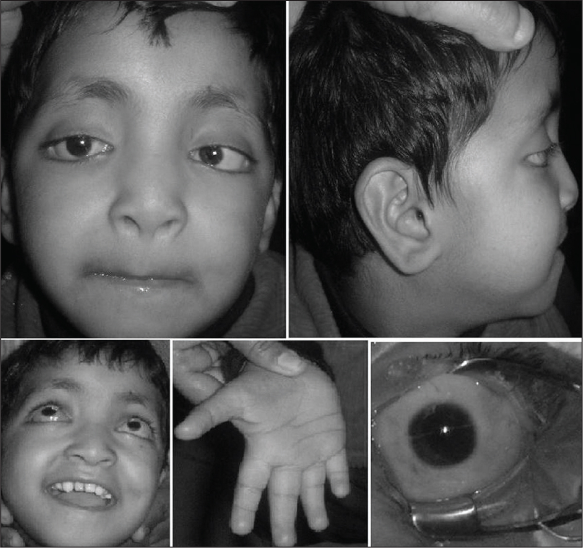 (A) Loss of Lateral Eyebrows, Mild Congenital Ptosis with Absence of Eyelid Fold, Euryblepharon, and Telecanthus Palpebralis. (B) Prominent Earlobes and Depressed Nasal Bridge. (C) Irregularly Placed and Shaped Dentition. (D) Prominent Finger Fetal Pad of Fat with Absent Distal Phalangeal Crease of the Ring Finger. (E) Multiple Nummular Corneal Opacities and Esotropia.