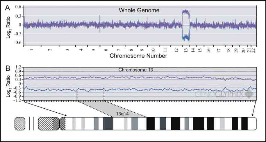 Microarray-Based Comparative Genomic Hybridization9 Comparing Patient to Control Dna from Lymphocytes. Overlapping Pink and Blue Lines Indicate Patient and Control Are the Same. The Deflection at Chromosome 13 Indicates a Single Copy Gain for the Patient (A). The Single-Copy Gain Extends over the Entire Long Arm of Chromosome 13, Suggesting the Patient Had Complete Trisomy 13 (B).