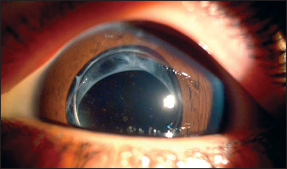 Capsular Tension Ring and Intraocular Lens in the Lens Capsular Bag 8 Months After Surgery.
