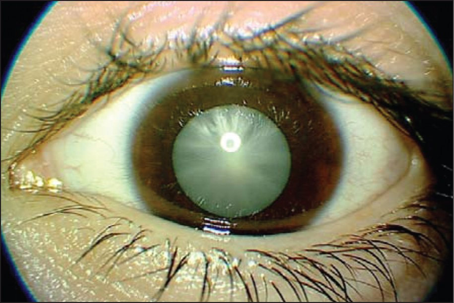 Juvenile Diabetic Cataract in the Left Eye Before Surgery.
