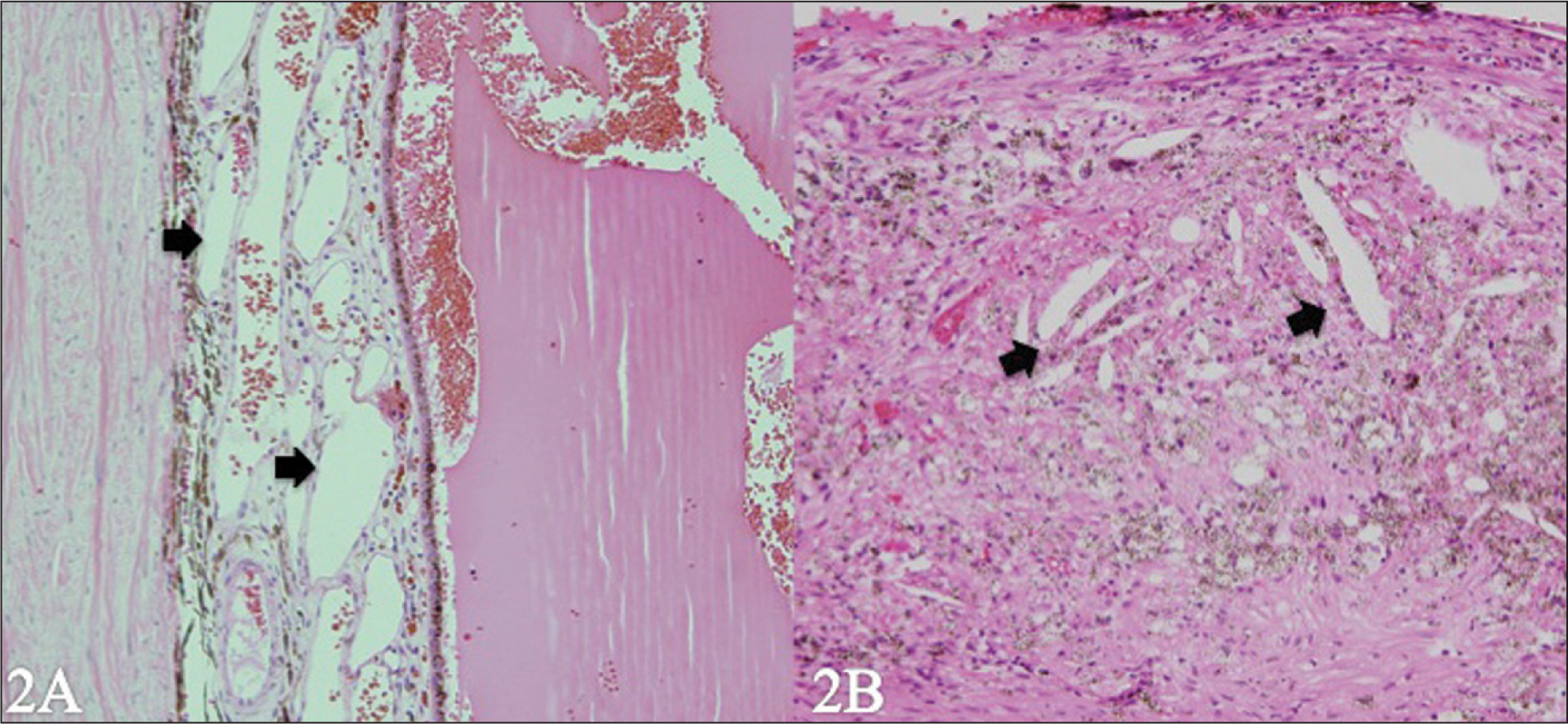 Histologic Examination Revealed Total Exudative Retinal Detachment. (A) Note the Presence of Telangiectasic Retinal Vessels (arrows) (hematoxylin–Eosin, Original Magnification ×10). (B) The Subretinal Fluid is Predominantly Hemorrhagic; Lipid-Laden Macrophages and Cholesterol Crystals are Present (arrows) (Hematoxylin–Eosin, Original Magnification ×40).