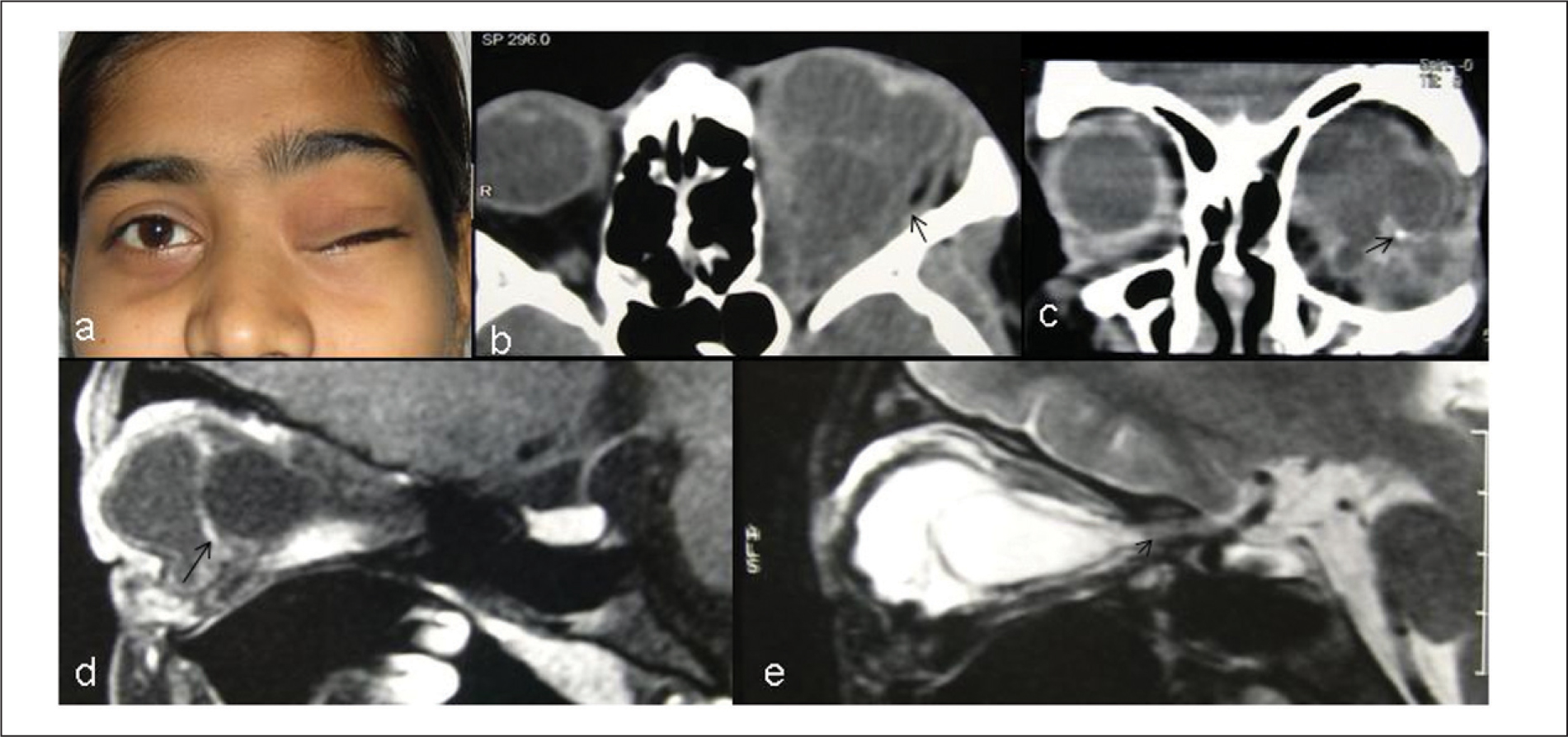 (A) Front View of Patient at Presentation Showing Bulge in Left Upper Eyelid with Completely Closed Palpebral Aperture. (B) Post-Contrast Axial and (C) Coronal CT Scan Showing a Multi-Cystic Left Intraorbital Mass Causing Expansion of the Bony Orbit with a Few Specks of Calcification (arrow). Small Enhancing Solid Component is Presumably Embryonic Neuroglial Tissue. Note the Left Lateral Rectus Muscle (arrow). (D) T1-Weighted and (E) T2-Weighted Sagittal Magnetic Resonance Images Show a Septum (arrow) Dividing the Mass into Anterior and Posterior Aspects. An Optic Nerve-Like Structure (arrow) is Seen Posteriorly in Relation to the Mass.