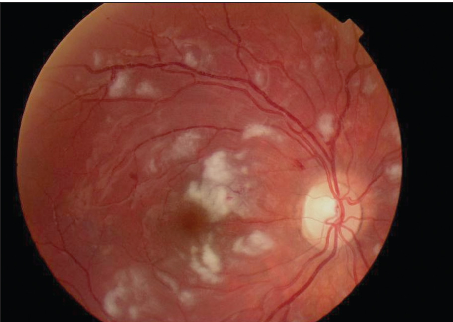 Right Eye of Case 2 Demonstrating Cotton Wool Spots and Mild Retinal Hemorrhages (visual Acuity 20/60).