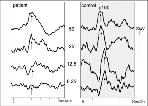 Pattern reversal visual evoked potentials elicited with both eyes regarding a range of check sizes. The patient's visual evoked potentials to the smaller checks are attenuated, indicating macular pathway dysfunction.