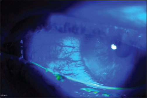 Case 1, with injected conjunctiva in the nasal aspect of the eye, two linear corneal abrasions adjacent to the limbus, and a moderate punctate corneal epithelialopathy surrounding the linear abrasion.