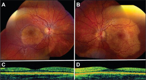After 3 years, fundus photographs and optical coherence tomography of the right (A and C) and left (B and D) eyes showed basal diameter enlargement of 1 to 2 mm without decalcification or photoreceptor atrophy on optical coherence tomography. Visual acuity was preserved in both eyes.