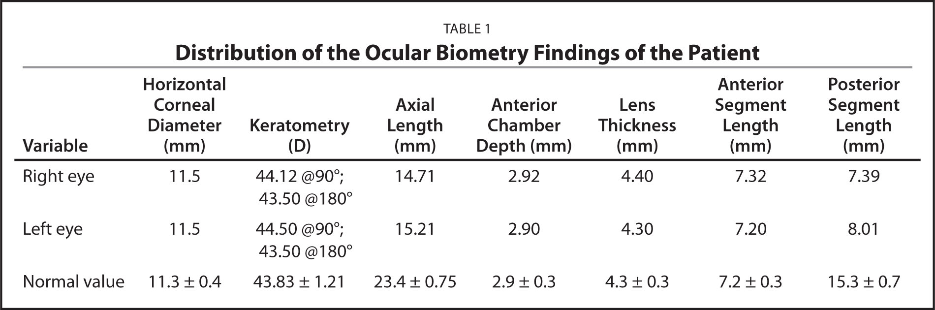 Distribution of the Ocular Biometry Findings of the Patient