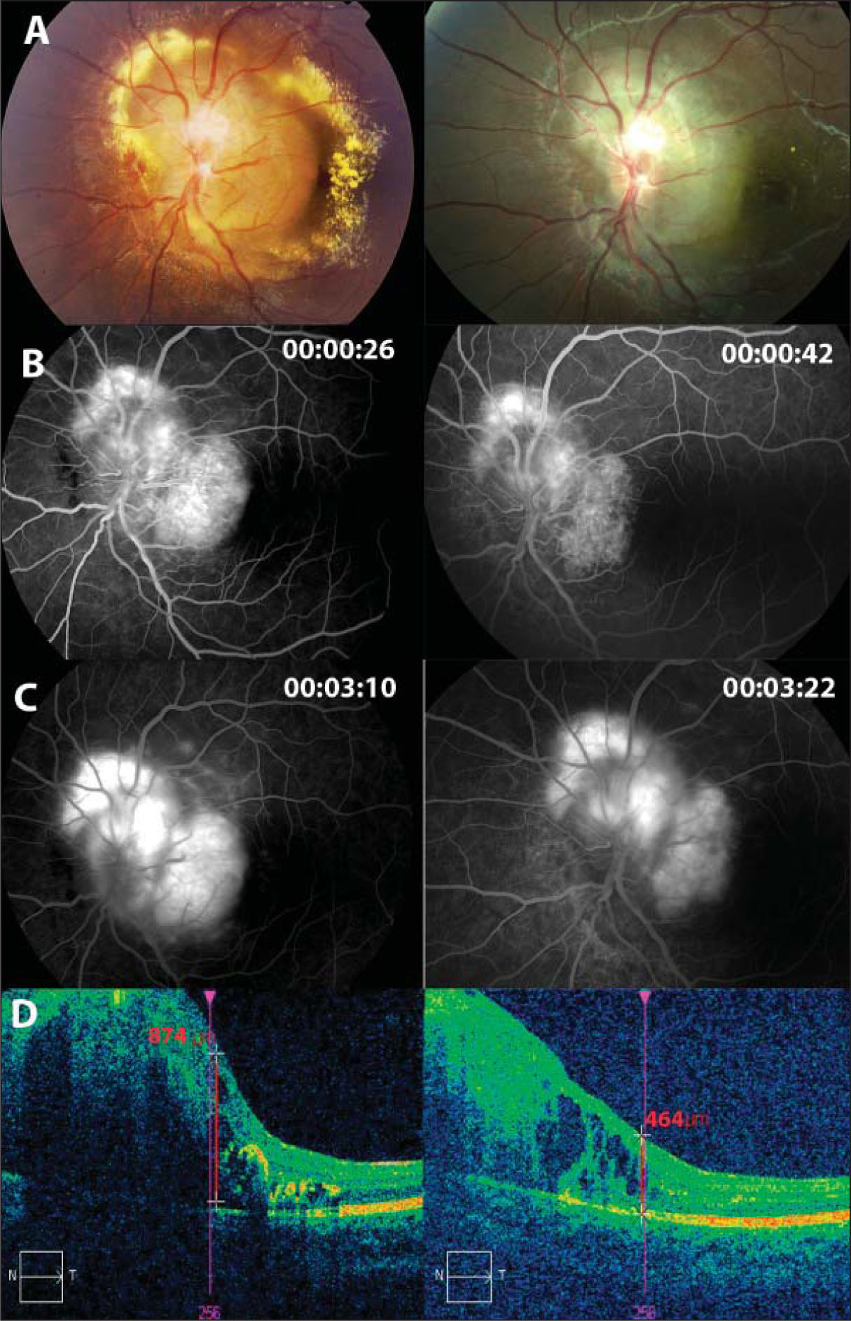 Clinical images before (left) and after (right) treatment. (A) Ophthalmoscopy shows the tumor in the superotemporal side of the optic disc surrounded by serous retinal detachment and abundant lipid exudation (left). Six months later, there is marked shrinkage and increased fibrosis of the tumor, as well as a decrease in exudation (right). (B) Early fluorescein angiography images show early, rapid filling of the lesion (left). Note the decrease in vascular density after treatment (right). (C) Late fluorescein angiography images show extensive late leakage of dye into the subretinal space (left). Note a decrease in leakage of the dye from the tumor after treatment (right). (D) Optical coherence tomography images, which include the central macula.