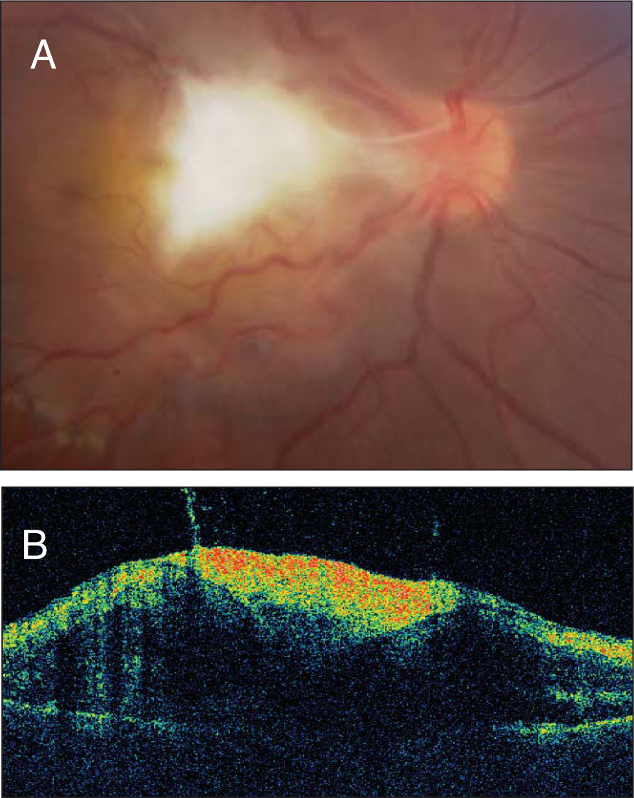 (A) Posterior pole granuloma with secondary fibrocellular membranes extending into the optic nerve, vitreous, and surrounding retina in an 8-year-old boy with Toxocara canis infection. (B) Optical coherence tomography reveals a characteristic hyperreflectivity of the internal layers of the retina with tractional macular detachment and posterior shadowing of the choroid.
