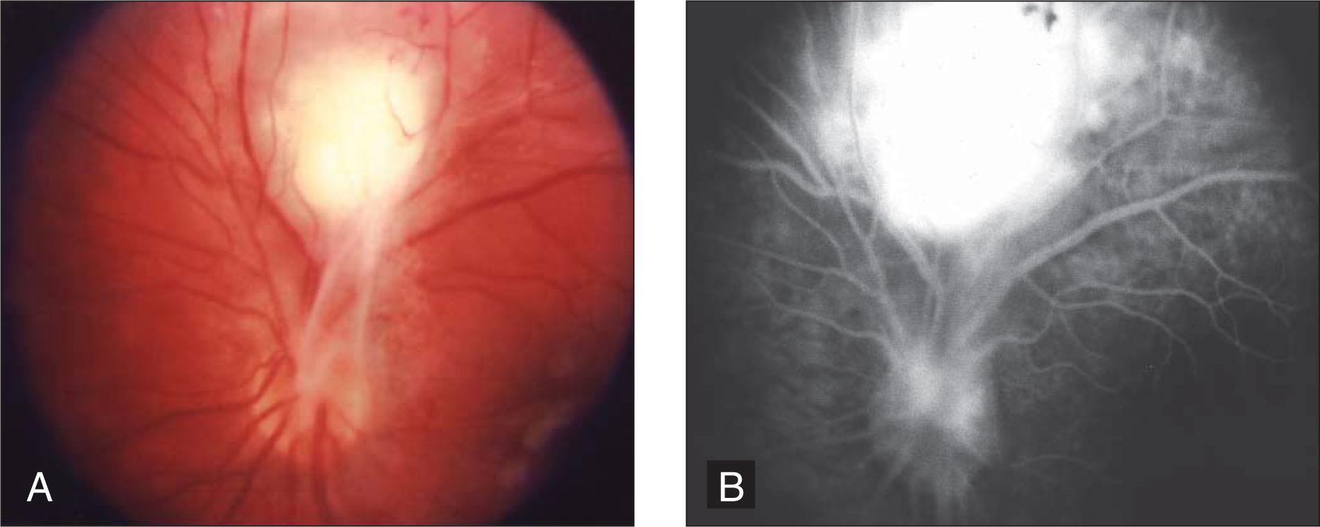 Posterior pole granuloma superior to the optic disc with secondary fibrocellular membranes extending into the optic nerve, vitreous, and surrounding retina in a 10-year-old boy with Toxocara canis infection. (A) Color photograph. (B) Fluorescein angiogram.