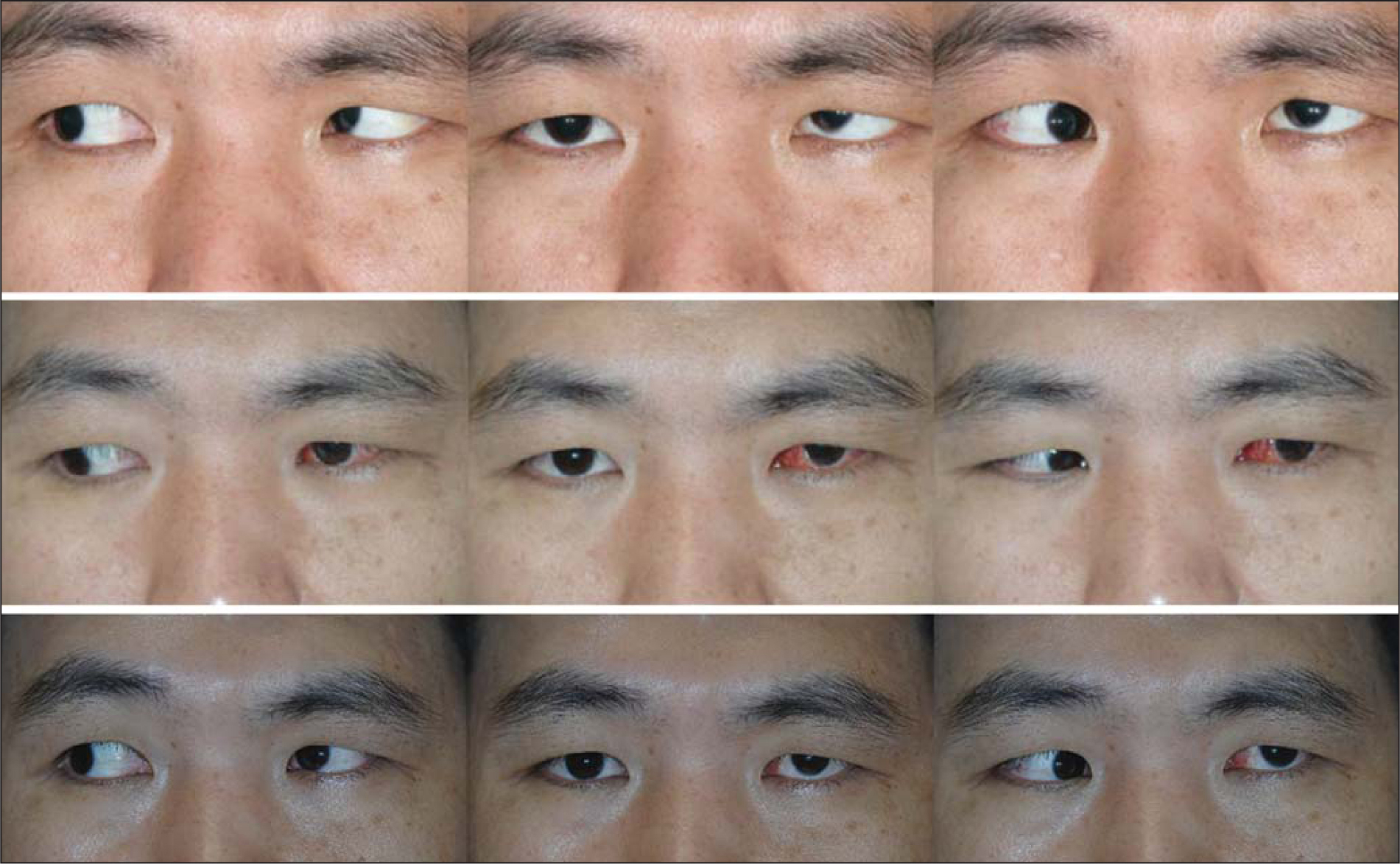 A 36-year-old man with left abducens palsy (case 3). (Top) The patient preoperatively showed a 60 prism diopter (PD) esotropia and a 10 PD left hypertropia with severely limited abduction. (Middle) One day postoperatively, the patient showed a 2 PD exotropia and a 6 PD left hypertropia with much improved abduction. (Bottom) Two months postoperatively, the patient showed a 10 PD left hypertropia.
