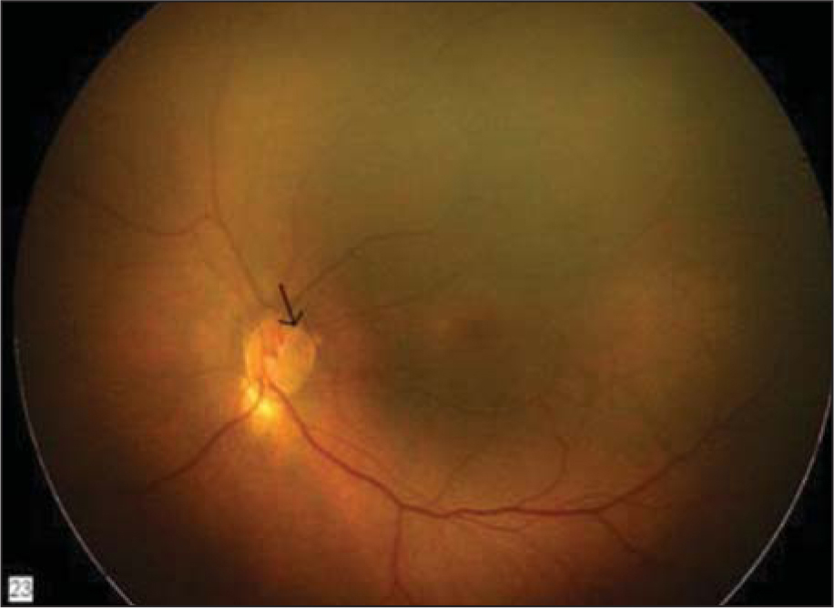 Inferior peripapillary retinochoroidal hypopigmentation with temporal optic nerve pit (arrow) in the left eye.