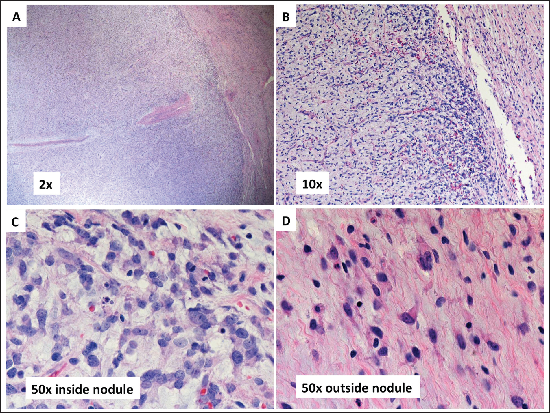 (A) A well-circumscribed, nodular proliferation with arborizing capillaries is seen within the myxoid neoplasm. There is increased cellularity within the nodule compared to the surrounding tumor (hematoxylin–eosin stain). (B) Condensation of neoplastic cells at the periphery of the nodule (hematoxylin–eosin stain). (C) The neoplastic cells within the nodule show moderate cellular atypia (hematoxylin–eosin stain). (D) Cells on the outside of the nodule appear stellate-shaped (hematoxylin–eosin stain). Most are bland, but some are binucleated with mild to moderate atypia.