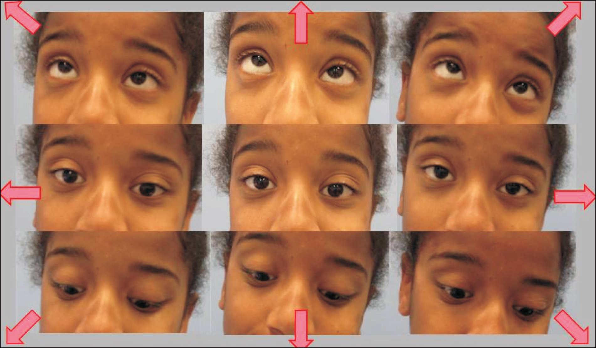 Photographs showing different postures and eye positions. The clinical profile of horizontal gaze palsy with progressive scoliosis was confirmed. Photographs demonstrating absent horizontal eye movement on attempted gaze to right (left) or left (right) but normal vertical gaze upward (upper) and downward (lower) from the primary position (central).