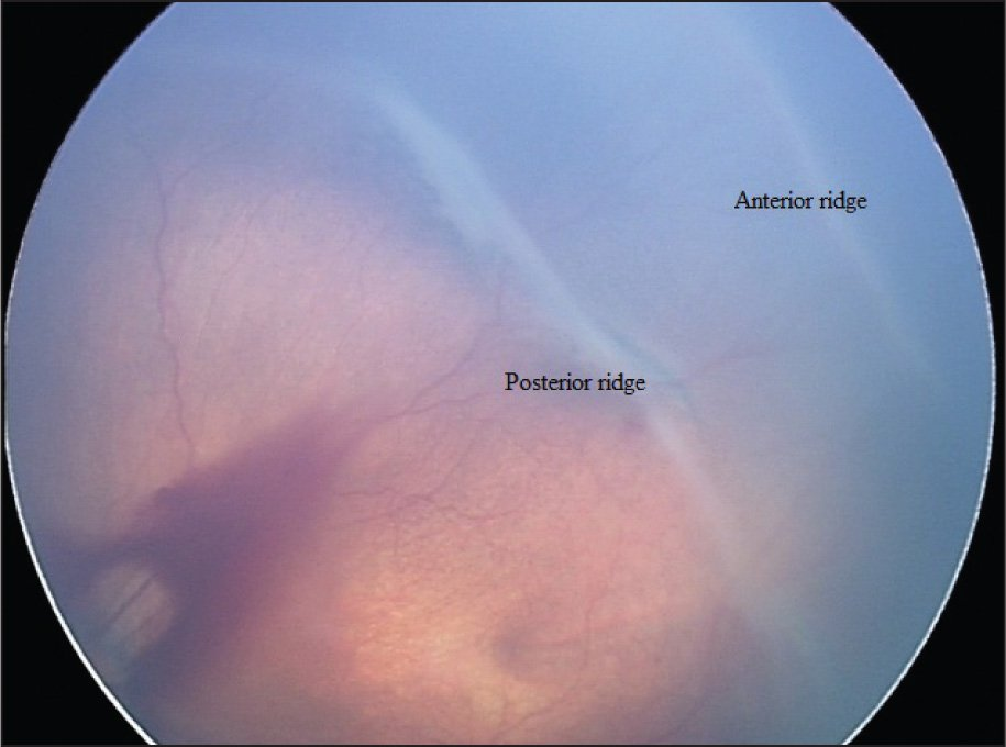 RetCam (Clarity Medical Systems, Pleasonton, CA) photograph of the left eye showing the double ridge formation.