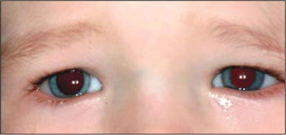 Patient at 22 months of age with resolved heterochromia.