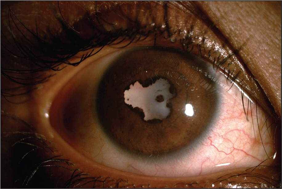 Slit-lamp photography showing white reflex and posterior synechiae.