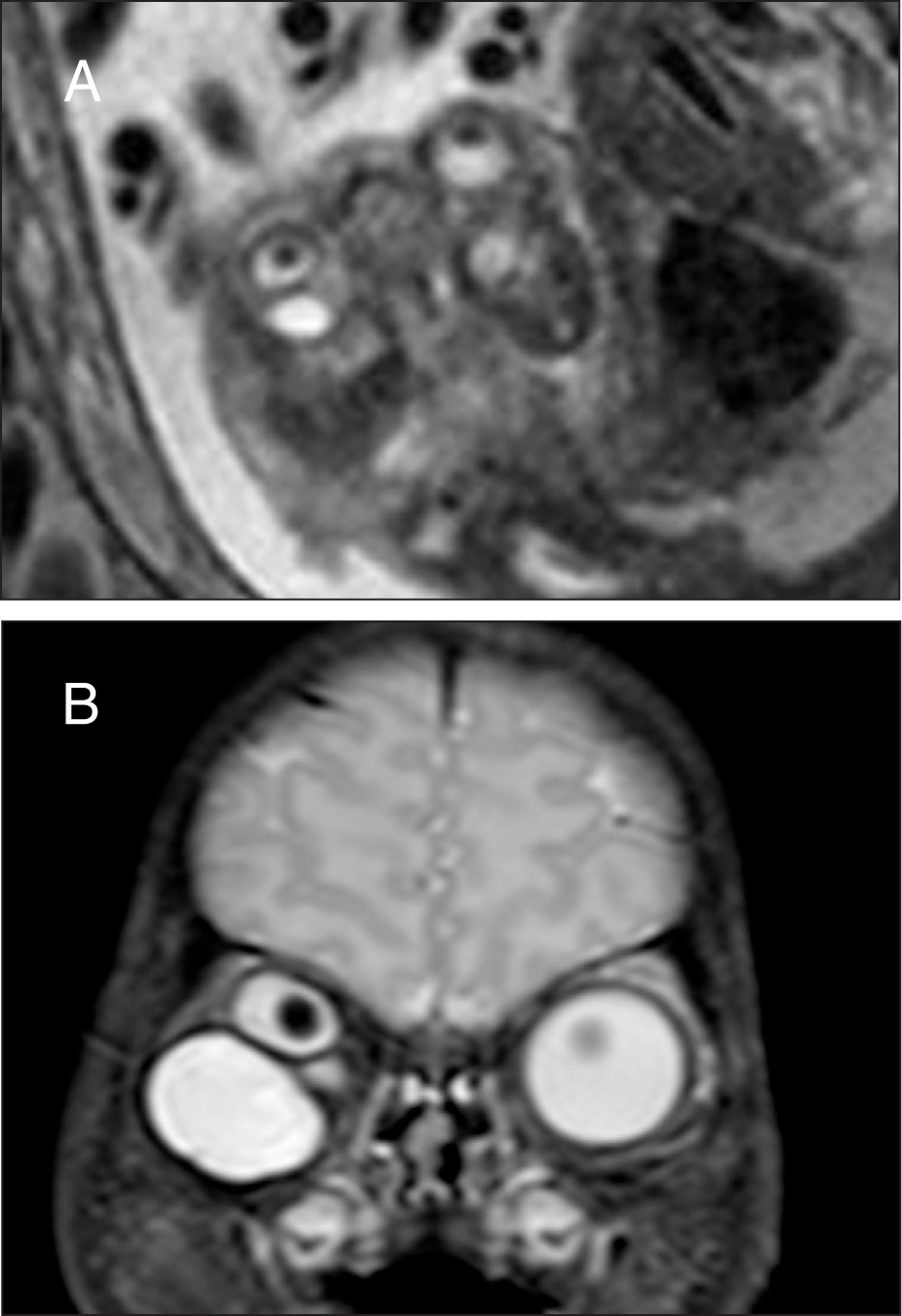 Prenatal magnetic resonance imaging showing microphthalmia of the right globe measuring 6 × 7 mm with orbital cyst and the normal left globe measuring 10 × 10 mm. (A) A definitive intraocular mass was not identified. (B) Postnatal magnetic resonance imaging confirmed the prenatal findings.