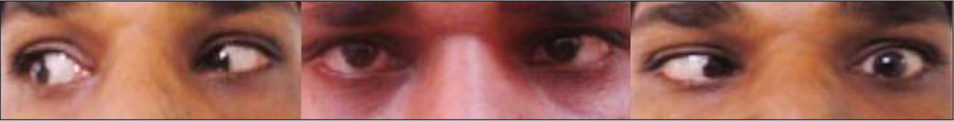 Left esotropia with complete lack of abduction in the left eye, palpebral fissure narrowing, and globe retraction on adduction suggestive of type 1 Duane retraction syndrome.