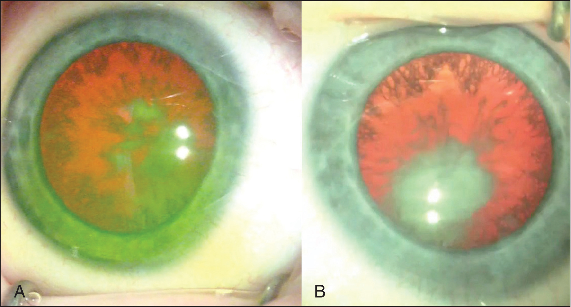 Intraoperative photograph of the (A) right and (B) left eye highlighting diffuse cortical changes. A more dense posterior opacity is noted inferonasally in each eye, obscuring the view of the fundus.
