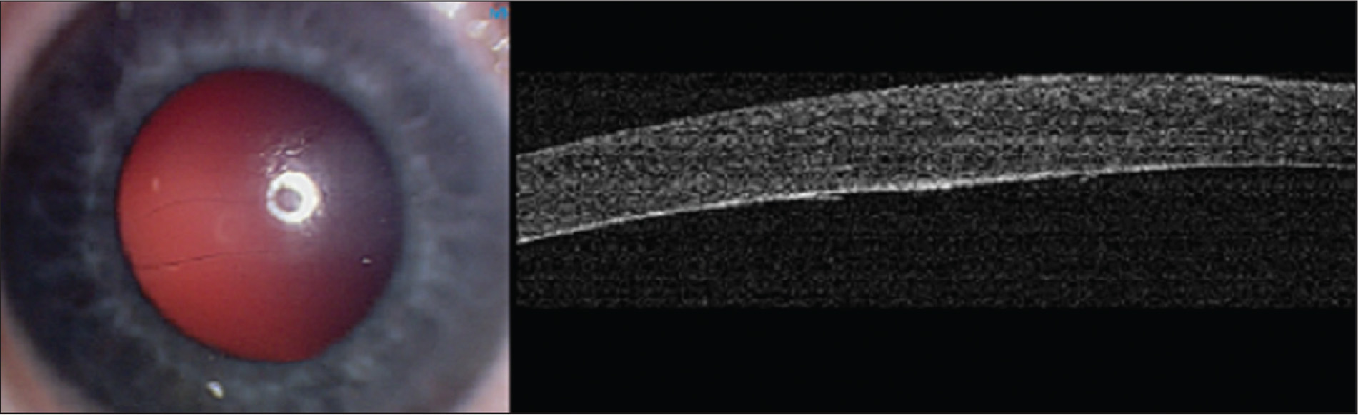 External photograph and anterior segment optical coherence tomography (AS-OCT) of patient 1. Horizontal Haab striae are seen involving the visual axis (left). AS-OCT showing partial cross-section of the Haab striae demonstrated the sharp edges of the broken Descemet's membrane. Note the localized stromal edema at the area between the broken Descemet flaps (right).