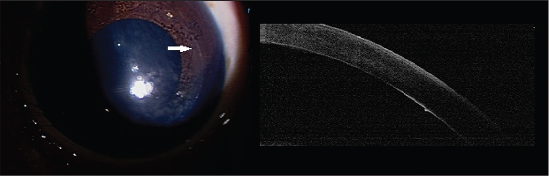 External photograph and anterior segment optical coherence tomography (AS-OCT) of patient 2. Peripheral, circumferential Haab stria is seen parallel to the limbus outside the visual axis with concurrent corneal opacity (arrow, left). AS-OCT demonstrated a smooth thickened protruding edge of the Haab stria (right).