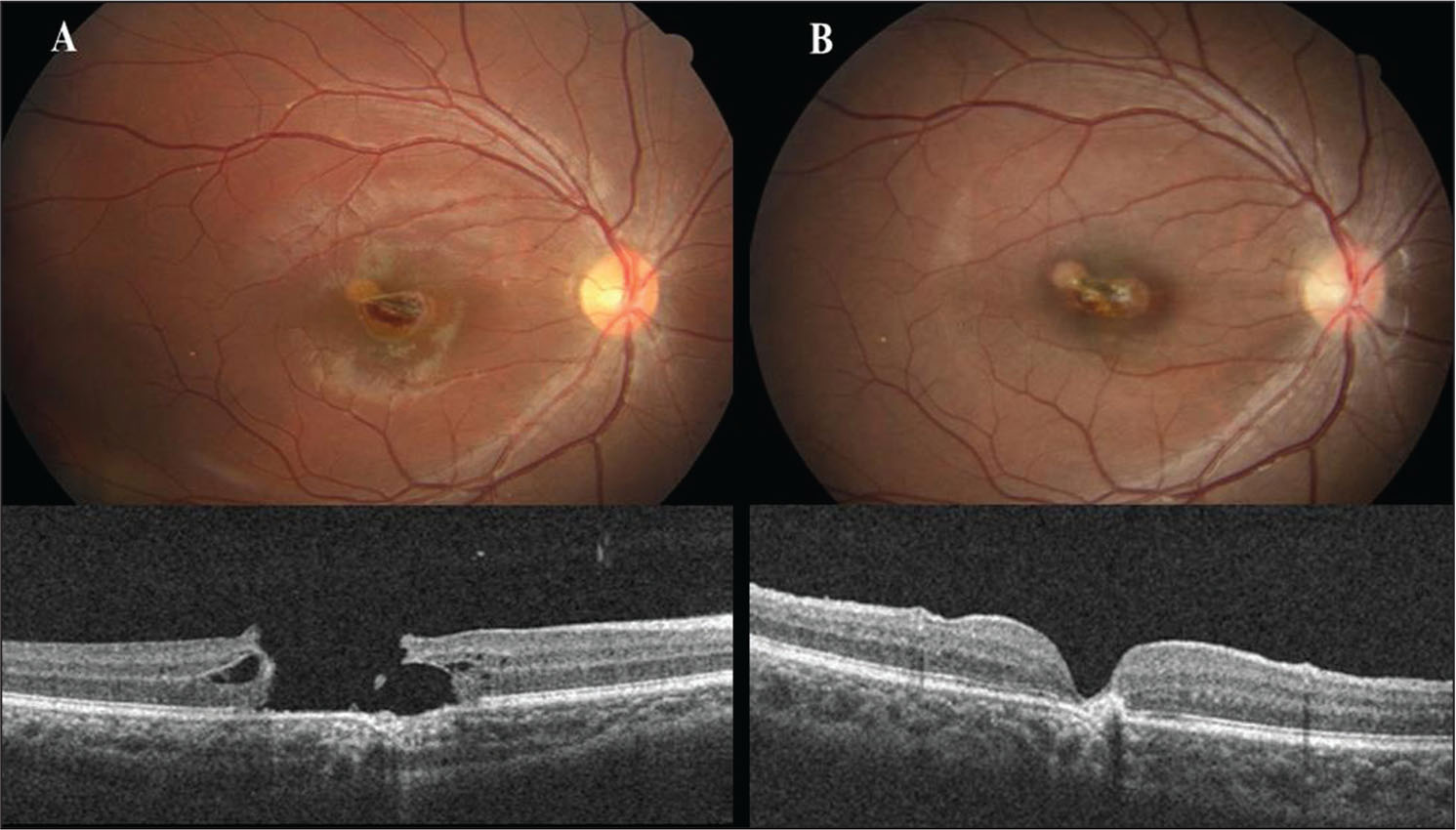 (A) Before vitrectomy, indirect funduscopy and optical coherence tomography in the right eye revealed a macular hole in case 2. (B) After vitrectomy, the visual acuity recovered to 20/50 and the macular hole was closed.