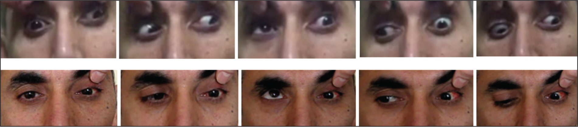 Preoperative (top) and postoperative (bottom) five gaze ocular motility of a patient who underwent medial transposition of split lateral rectus muscle surgery due to chronic total oculomotor nerve palsy in the left eye.