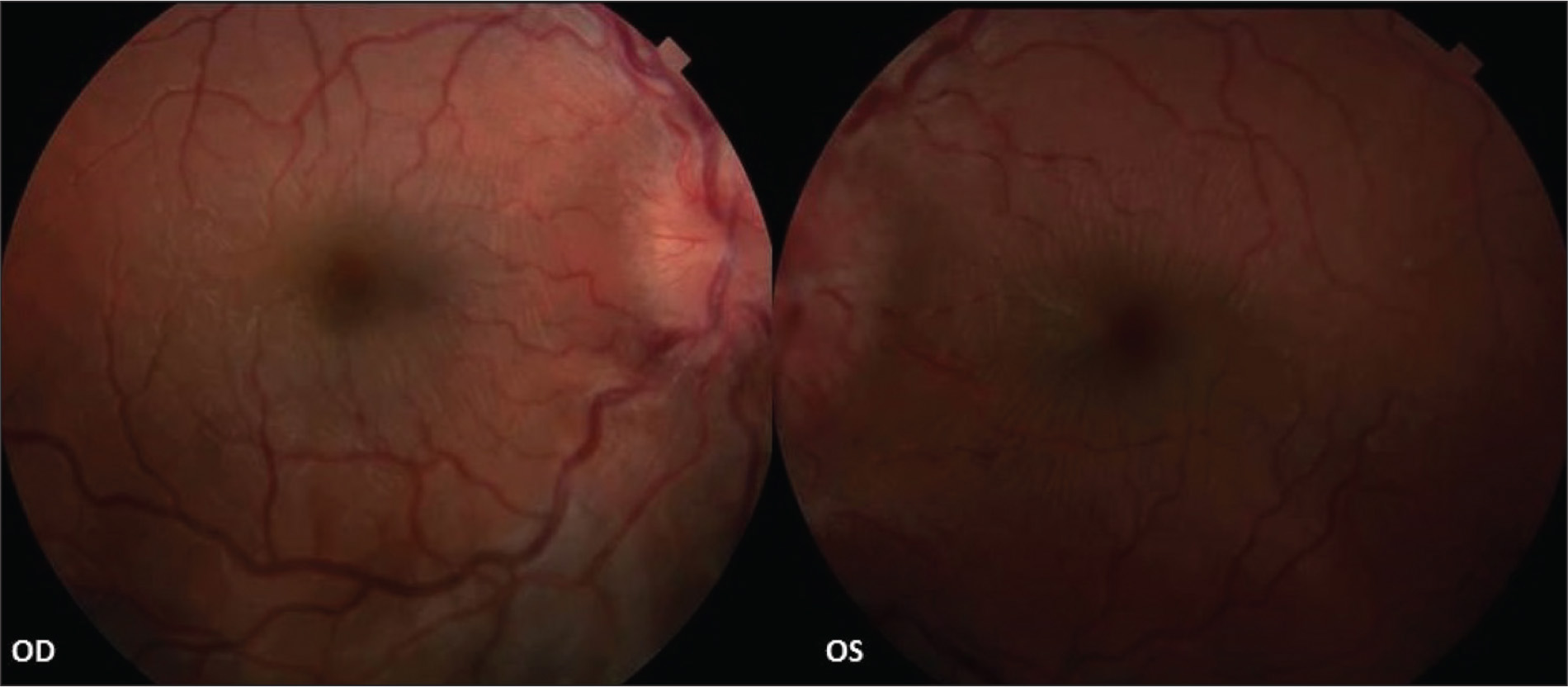 Fundus photographs showing optic disc edema and macular striae bilaterally. OD = right eye; OS = left eye