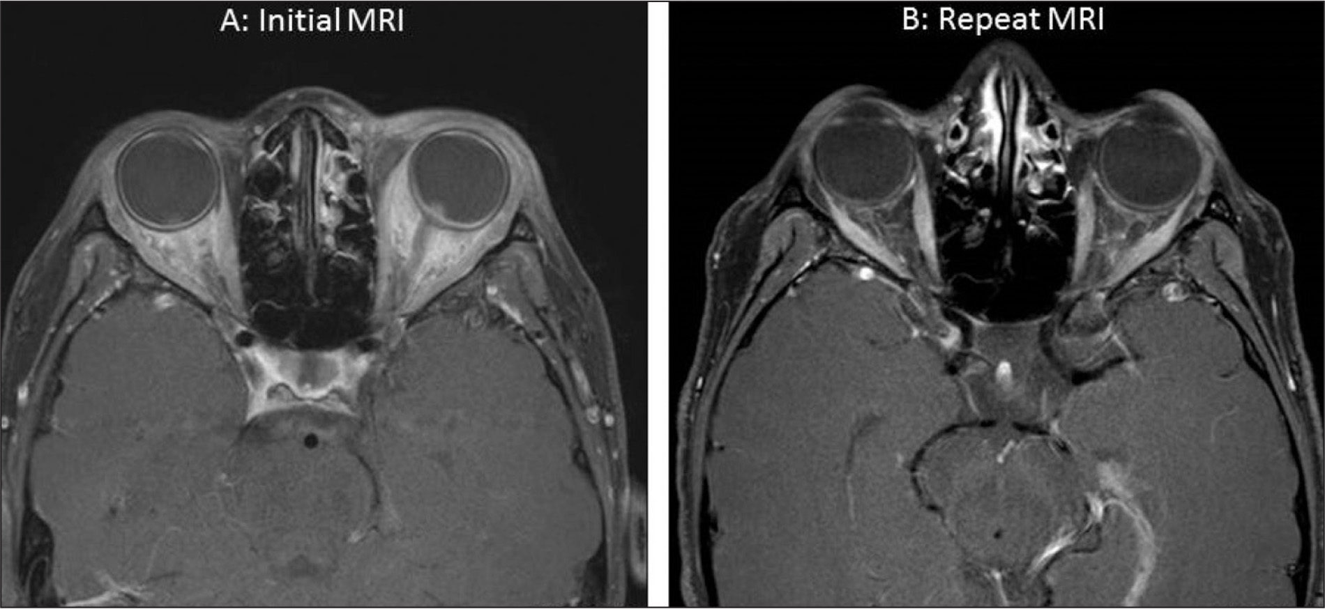 (A) Initial magnetic resonance imaging (MRI) (T1-weighted post-contrast, fat saturated view) showing bilaterally enhancing soft tissue density in the intraconal fat and prominence of the optic discs and enhancement of the sclera bilaterally. (B) Repeat MRI shows improved orbital inflammation and near complete resolution of optic disc and scleral enhancement.