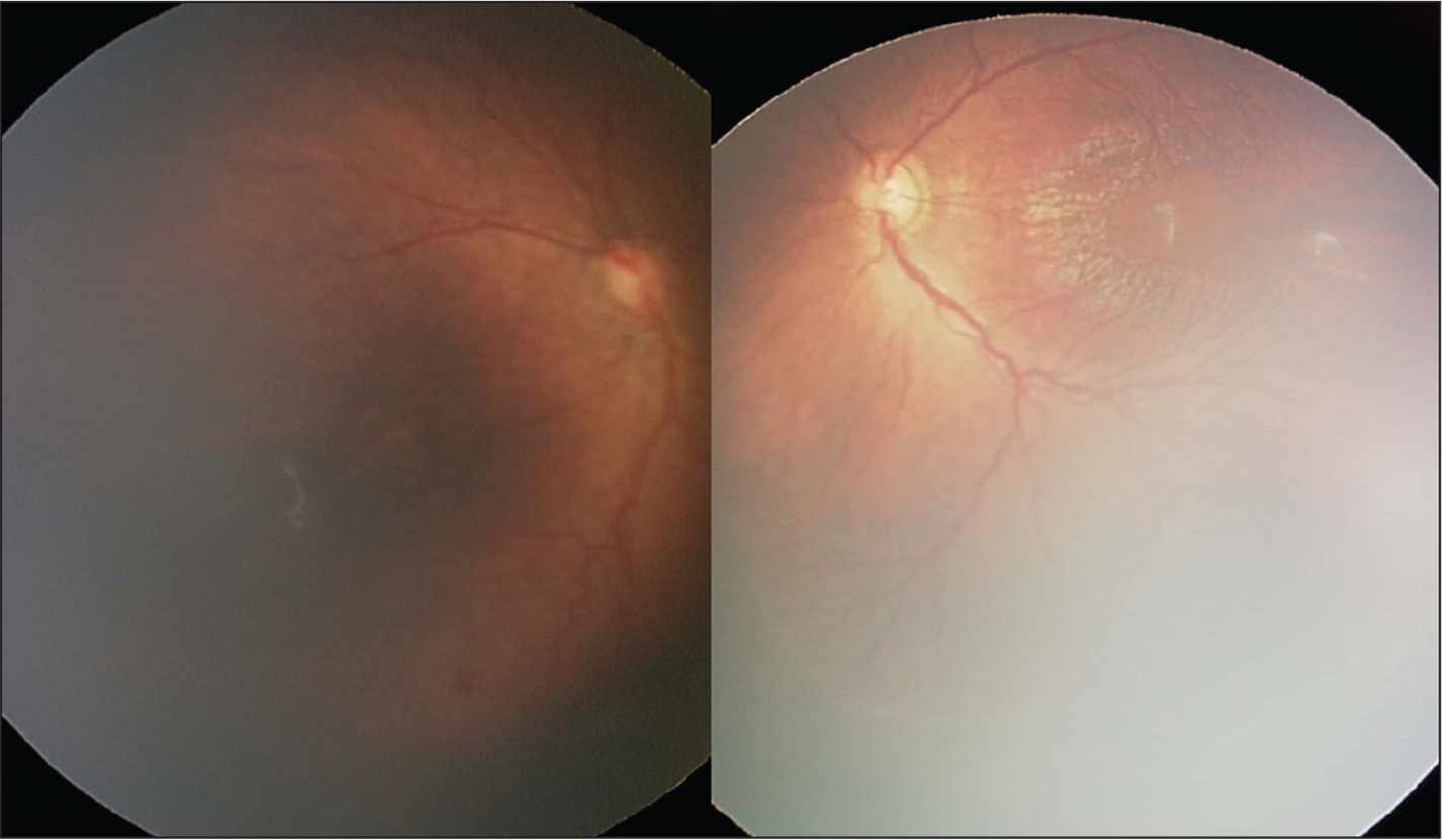 Case 1 follow-up examination at post-menstrual age 44 and 5/7 weeks in the right eye (left) and left eye (right).