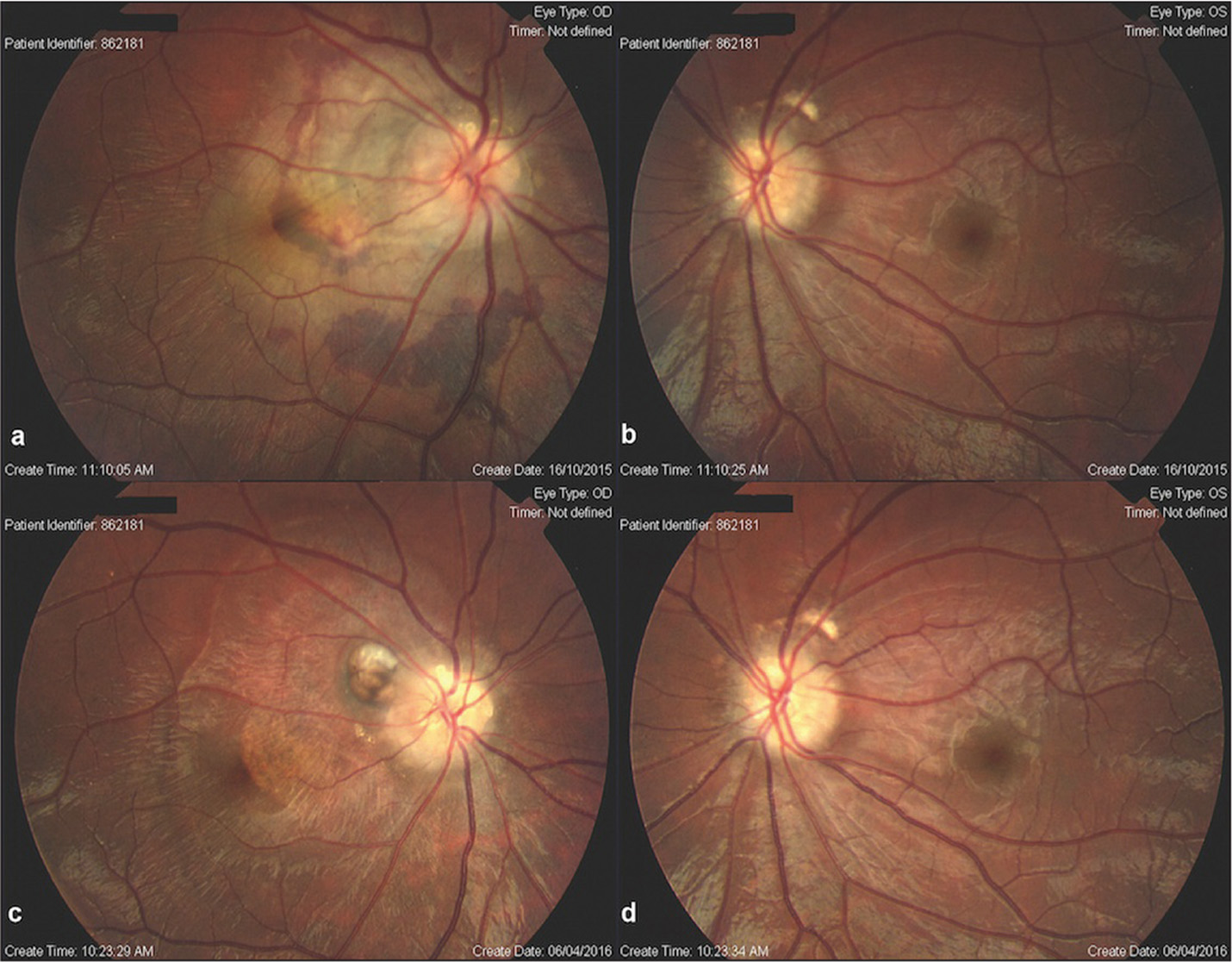Fundus photographs. (A) Papilledema with the peripapillary choroidal neovascular membrane (CNVM) superotemporal to the optic disc, subretinal fluid involving the fovea, subretinal hemorrhage temporal and inferior to the scar, and retinal striae in the right eye on initial presentation. (B) Indistinct peripapillary border in the left eye on presentation. (C) Peripapillary choroidal scar superotemporal to optic disc and pigmentary changes in the nasal macular area in the right eye 3 months following injection. (D) Distinct peripapillary border in the left eye 3 months following injection.