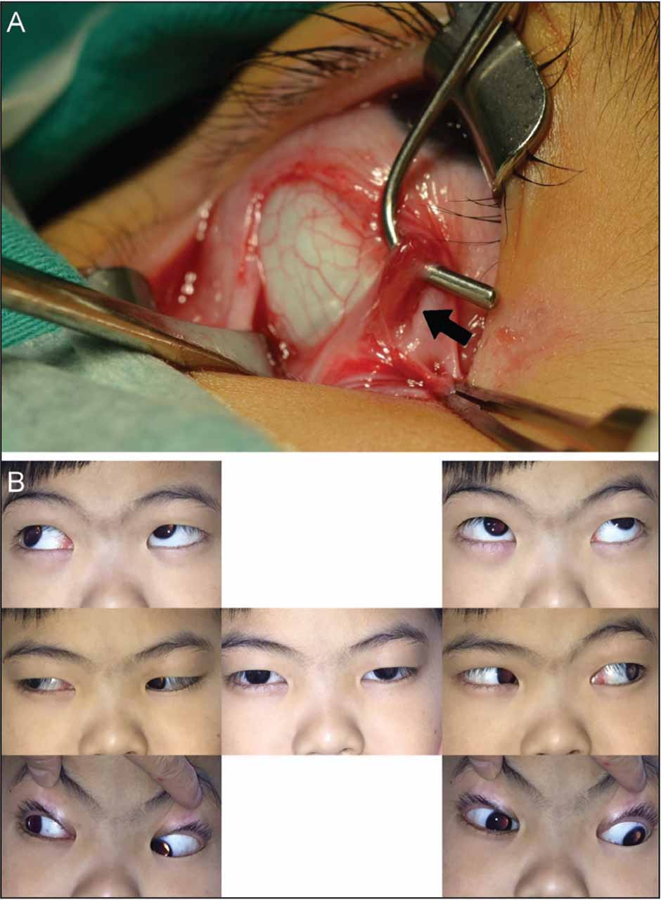(A) Intraoperative findings of case 2. Instead of the normal inferior rectus muscle, only a sheath with the anterior ciliary vessel (arrow) was observed in the inferior aspect of the eye. (B) Postoperative eye positions of case 2.