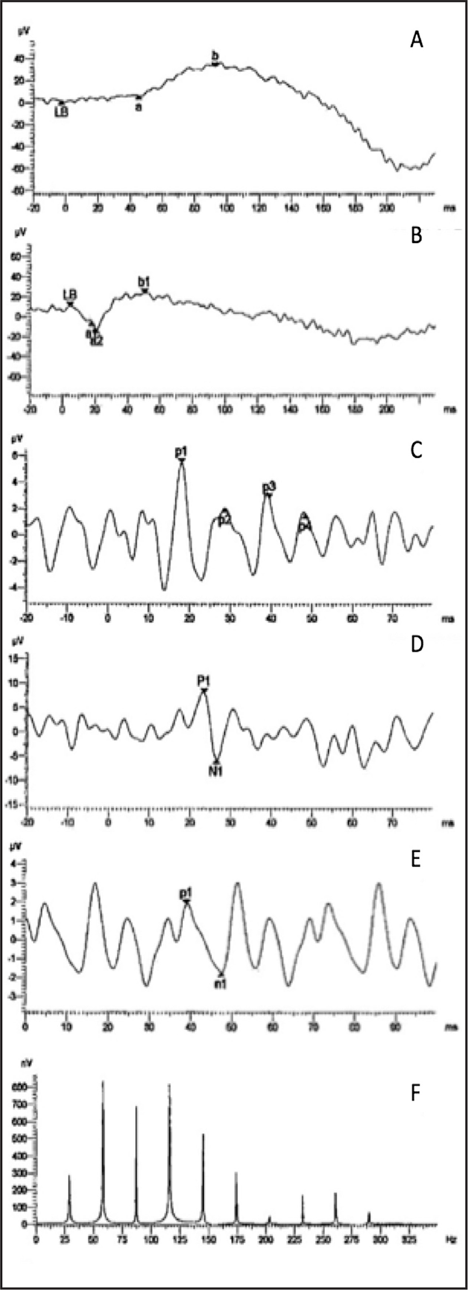 Full-field electroretinogram with decreased amplitude of cones and rods can be observed. (A) Rod response, (B) maximum response, (C) oscillatory potentials, (D) cone response, (E) 30-Hz flicker, and (F) frequency spectrum.