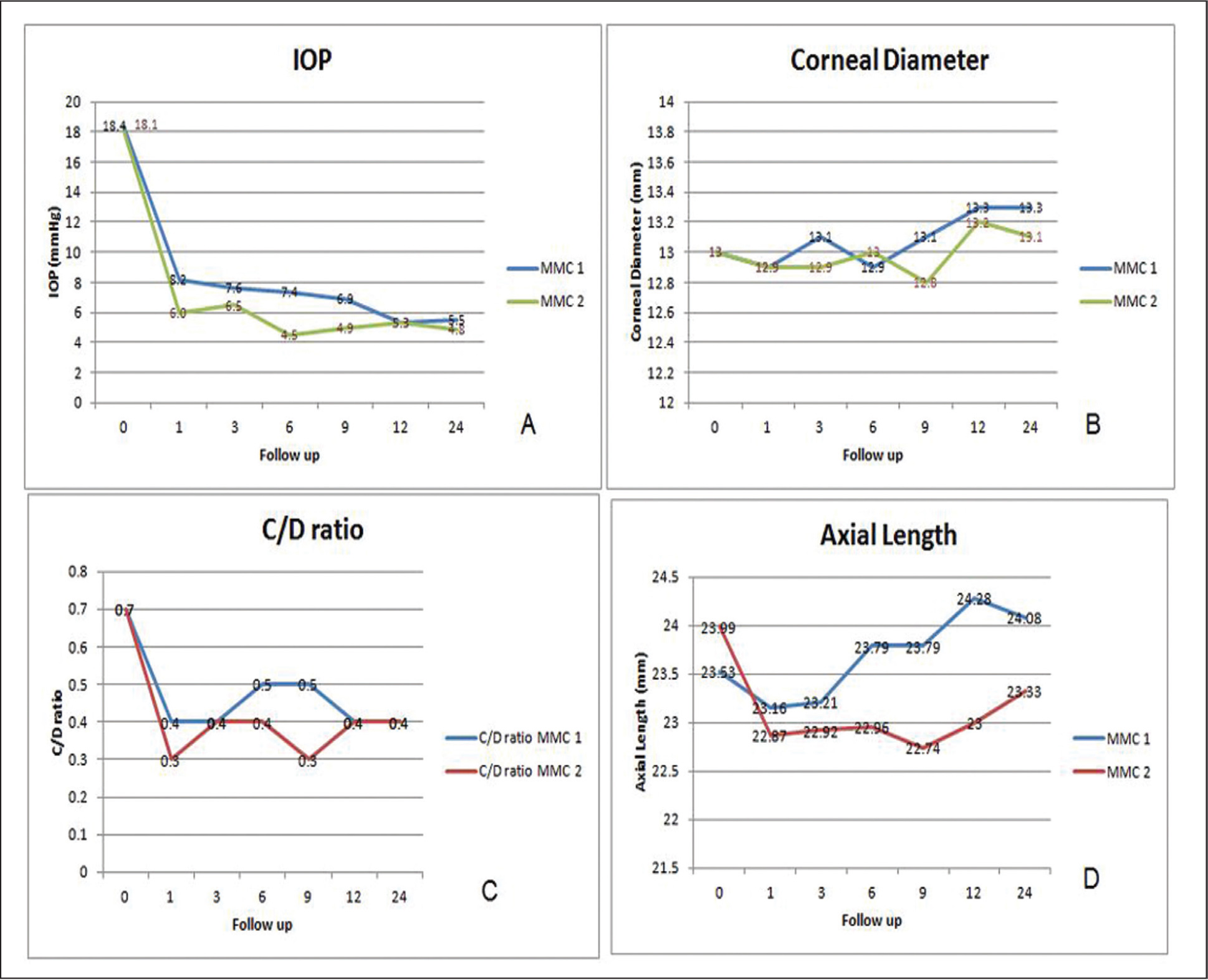 Composite image demonstrating line graphs of the clinical examination data of the included eyes with successful initial surgical procedure. IOP = intraocular pressure; MMC 1 group = patients who underwent combined trabeculotomy–trabeculectomy with intraoperative mitomycin C application for 1 minute; MMC 2 group = patients who underwent combined trabeculotomy–trabeculectomy with intraoperative mitomycin C application for 2 minutes; C/D = cup–disc