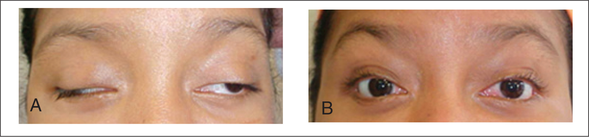 A 14-year-old girl with complete bilateral III nerve palsy (A) before and (B) after strabismus surgery and frontalis suspension with braided polyester (48 months' follow-up).