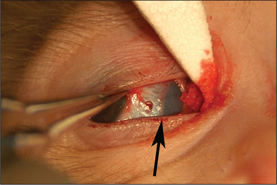 Right eye immediately after disinsertion of the medial rectus muscle in a 4-week-old macaque. The globe was rotated laterally by forceps at the limbus to reveal the insertion site (arrow) and thin blue sclera underneath the former location of the muscle. The cellulose spear was used to retract the limbal edge of the conjunctiva medially.