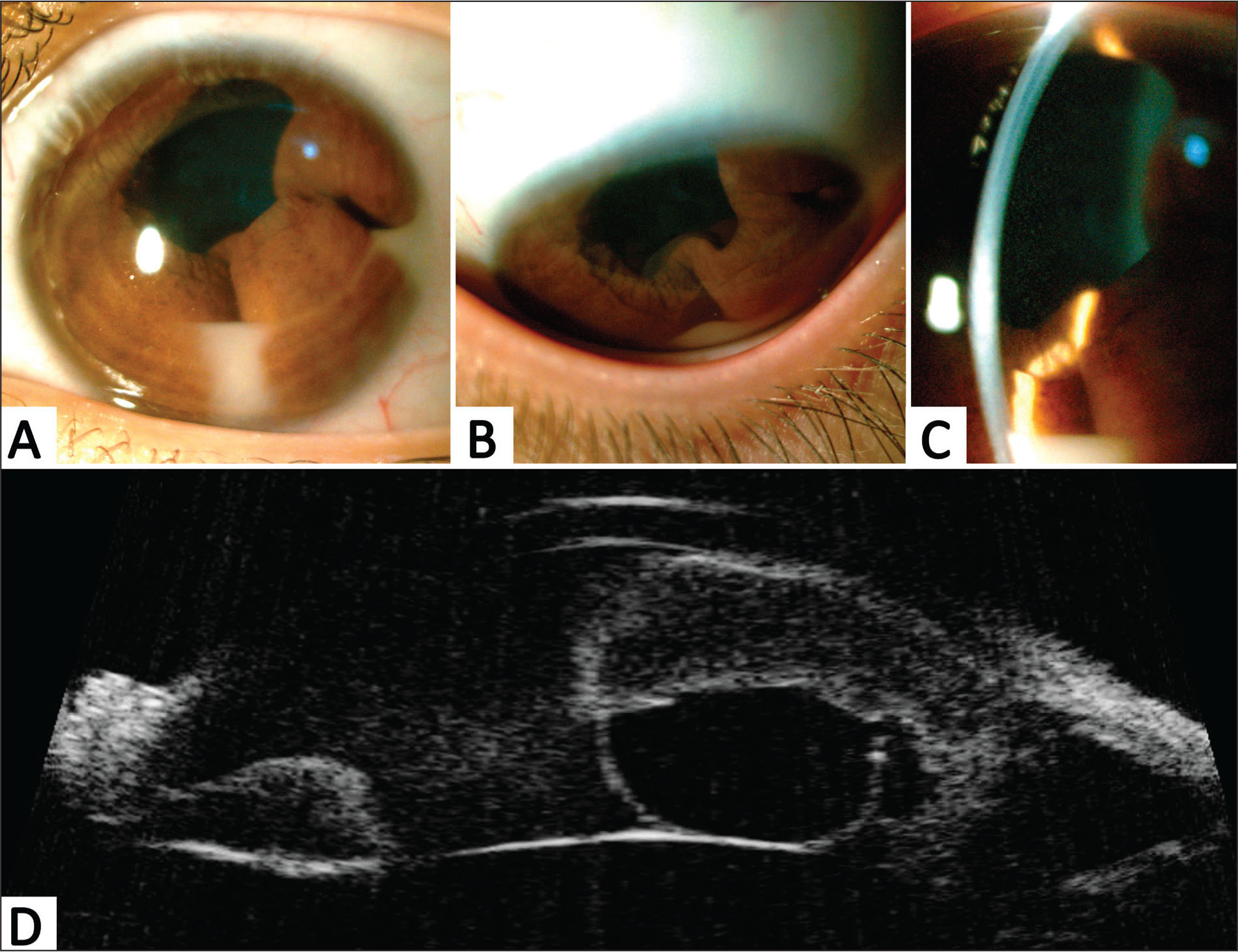First ophthalmological evaluation at the 43rd week of the chemotherapy regimen. (A–C) Slit-lamp photographs showing iris thickening and folds predominantly from the 1- to 9-o'clock positions, iris retraction from the 12- to 1-o'clock positions, small and diffuse keratic precipitates, and 4+/4 anterior chamber reaction with pseudohypopyon at the 3- and 6-o'clock positions. (D) Axial ultrasound biomicroscopy showing thickness of the iris and ciliary body associated with a cyst of the iris pigment epithelium at the 6-o'clock position.