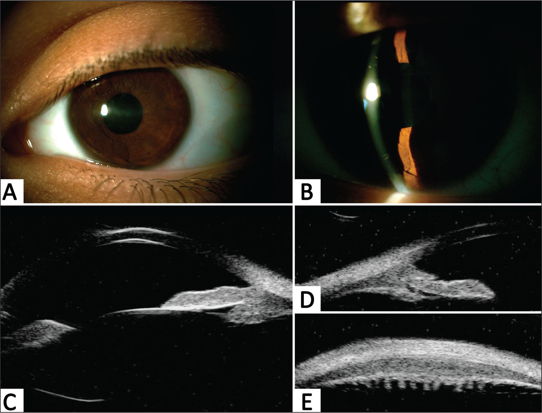 Left eye ophthalmological examination 2 months after the eighth intravitreal methotrexate injection. (A–B) Slit-lamp photographs showing improvement of iris color and morphology, without anterior chamber reaction. (C) Axial vertical, (D) 6-o'clock longitudinal, and (E) 6-o'clock transverse ultrasound biomicroscopy scans showing normal iris and ciliary body morphology.