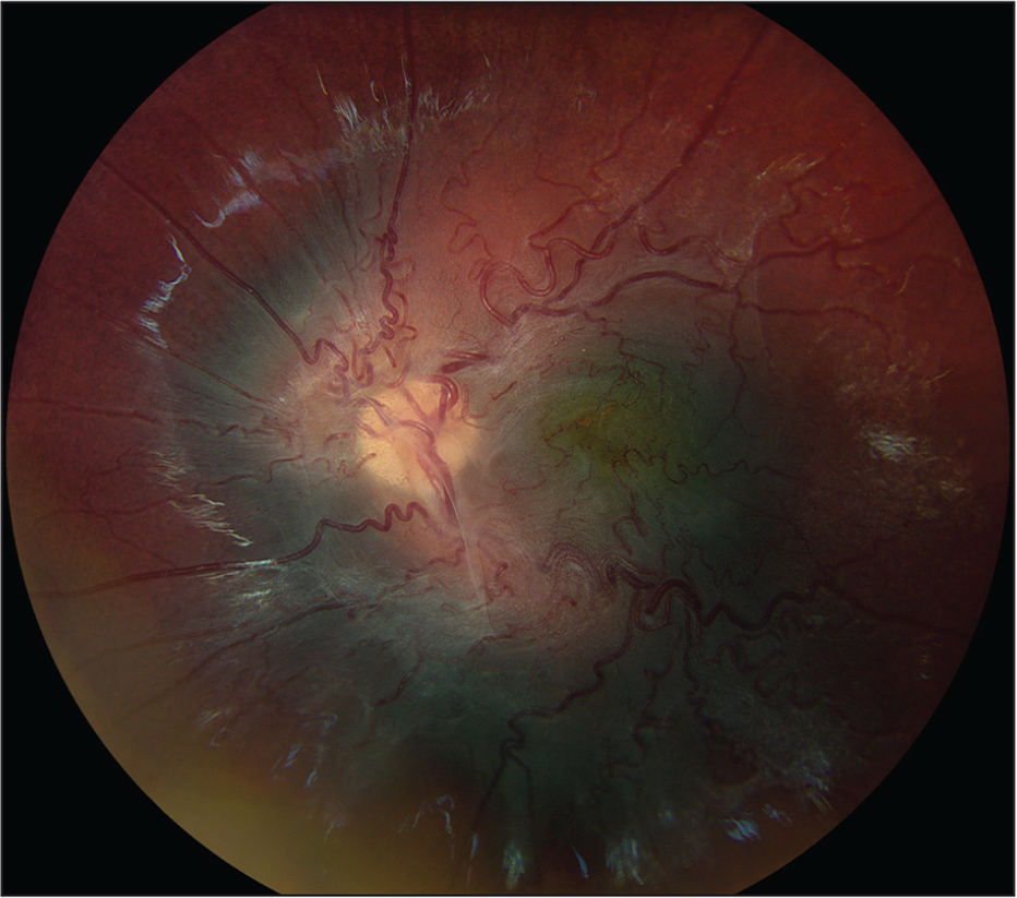 Fundus photography of the left eye at 48 months showing further progression of fibrosis and vascular tortuosity.