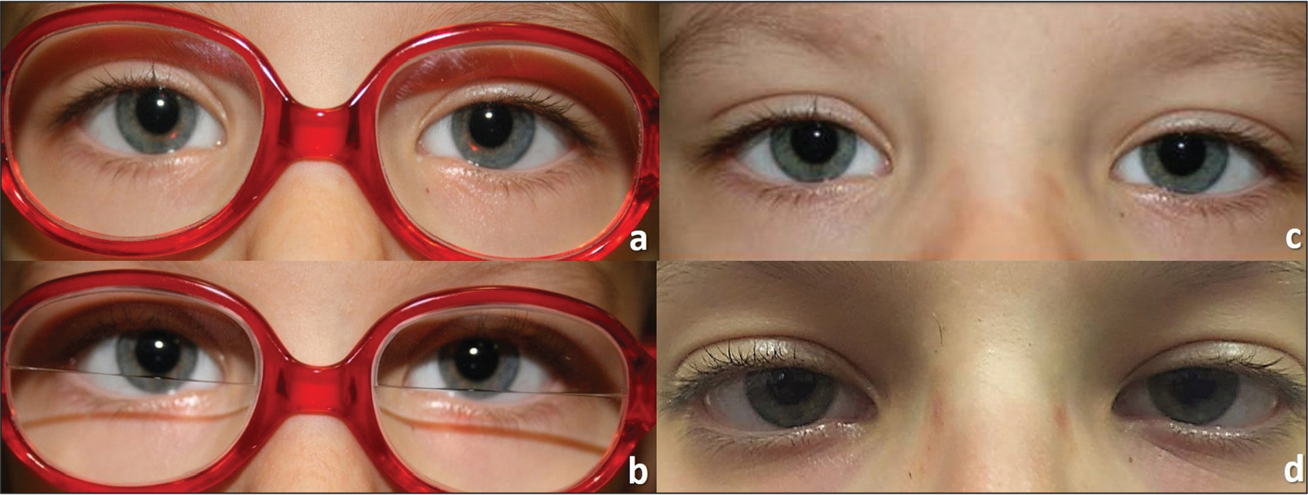 Case 2 (A–B) 2 months after botulinum toxin type A injection with glasses. (C) Orthophoria with bifocal lenses at 4 months after botulinum toxin type A injection. (D) Eight years after botulinum toxin type A injection without glasses.