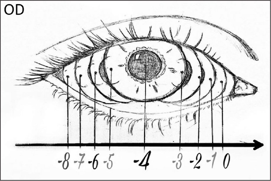 Schematic representation for grading adduction limitation in the right eye.