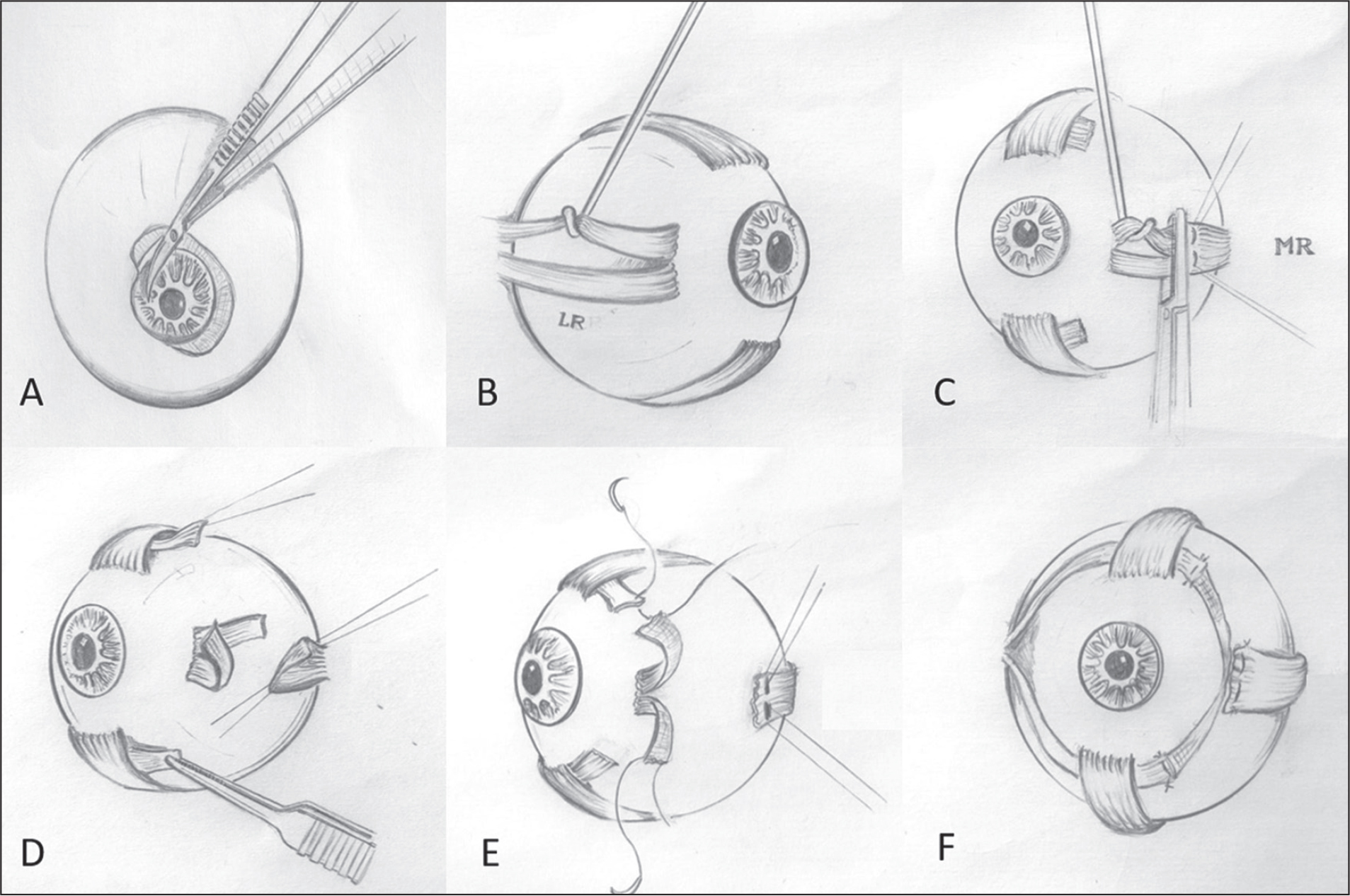 Schematic figure of lateral rectus–medial rectus union surgery in the right eye.